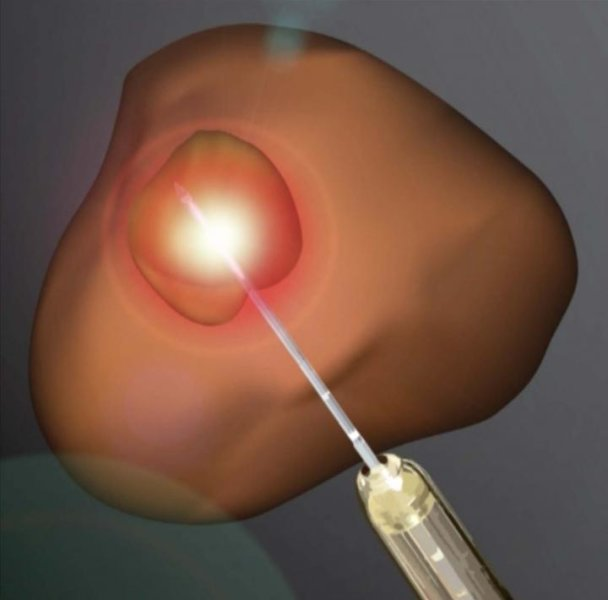 Prostate Cancer Treatment with Laser Method Is a Success