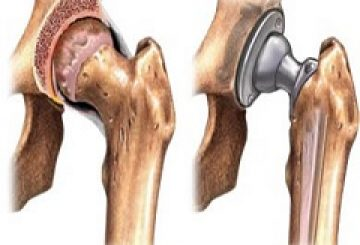 Global Bone Replacement Market 2017: by Manufacturers, Countries, Type and Application