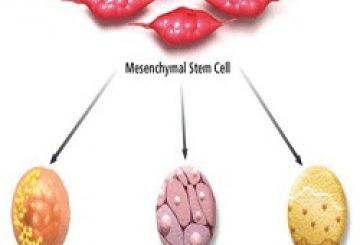 Global Mesenchymal Stem Cells Market 2017 – Industry Growth, Size and Share to 2022