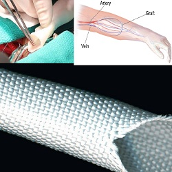 Man-made Vascular Graft Market